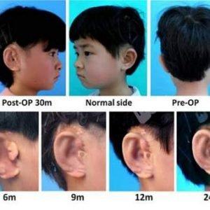Científicos chinos consiguen implantar orejas utilizando impresoras 3D