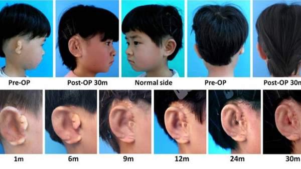 Científicos chinos consiguen implantar orejas utilizando impresoras 3D 7