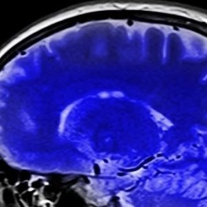 Descubren qué pasa en el cerebro momentos antes de morir