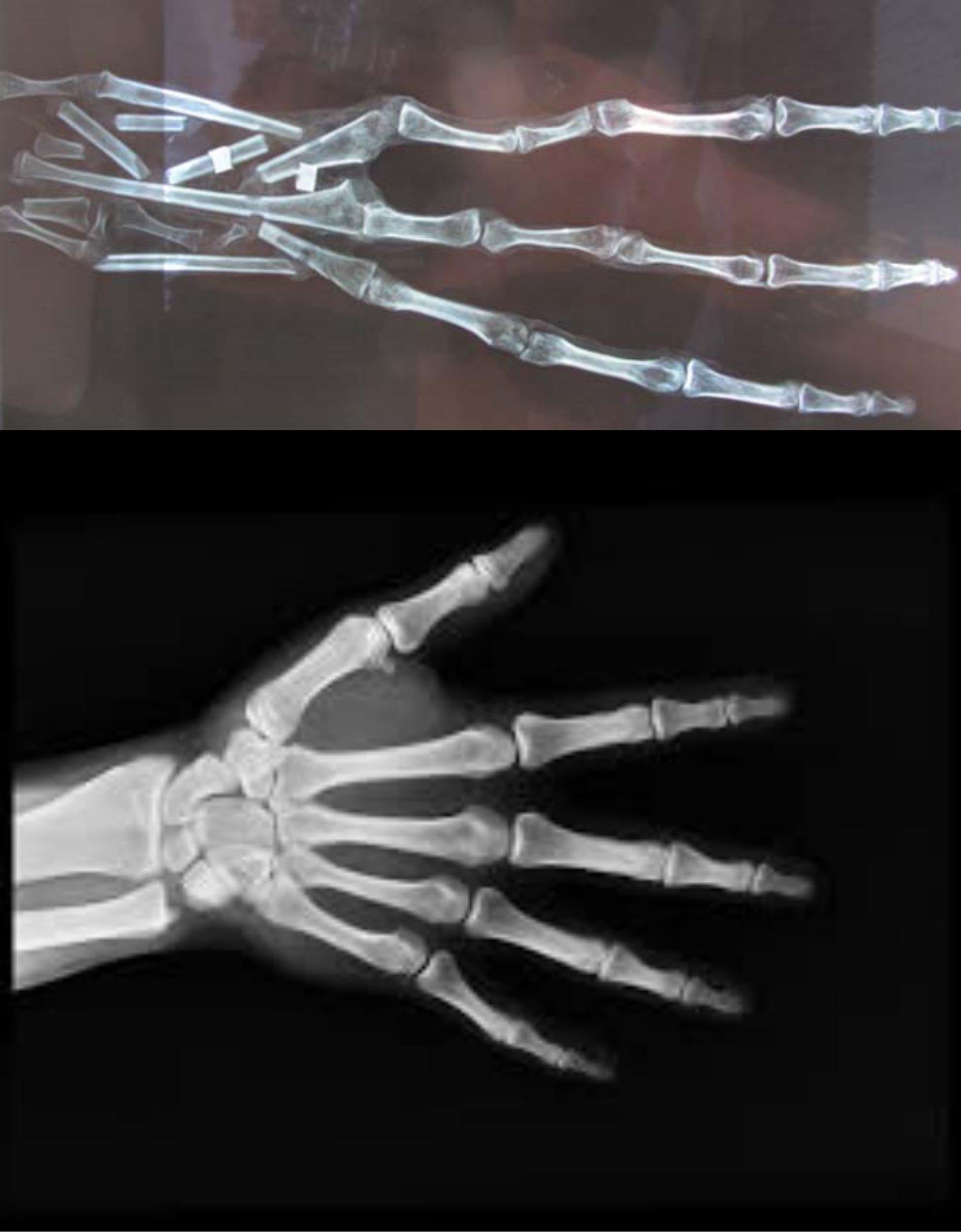 Comparativa mano de la momia y mano humana