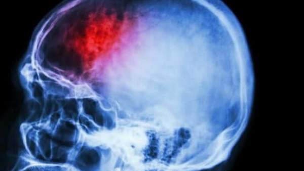 Identificado un gen vital para la recuperación después de un ictus 1