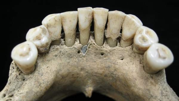 El Hallazgo De Lapislazuli En La Dentadura De Una Mujer Revela La Aportacion Femenina En Los Manuscritos Medievales, Planeta Incógnito