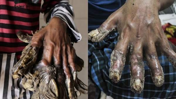 ¿En qué consiste la enfermedad que transforma a los afectados en 'hombre árbol'? 1